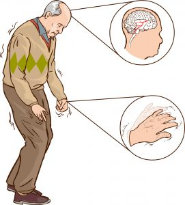 Parkinson's Disease Tremors
